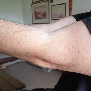 Arm won't straighten